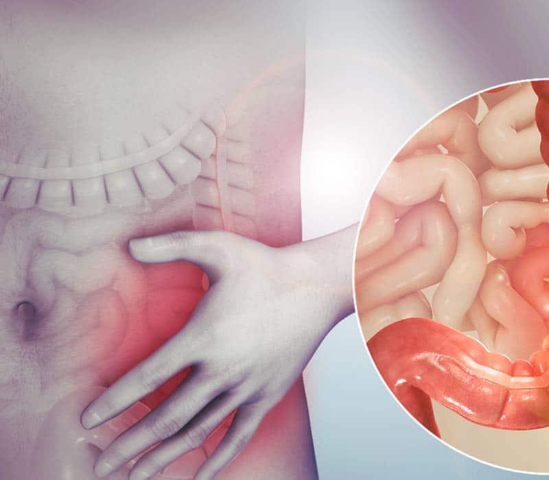 IBS och IBD